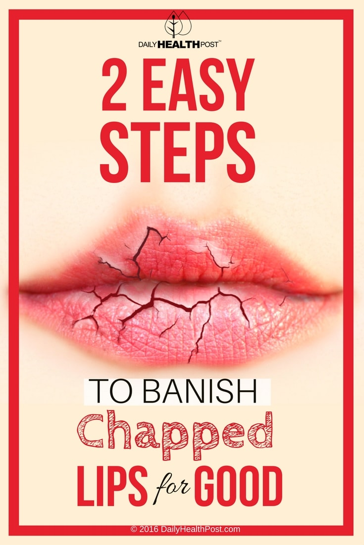 2 Easy Steps To Banish Chapped Lips For Good Exfoliate