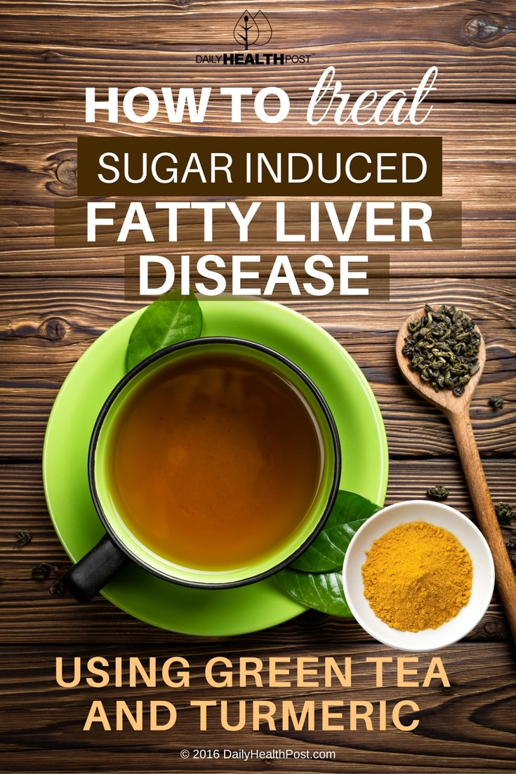 how-to-treat-sugar-induced-fatty-liver-disease-using-green-tea