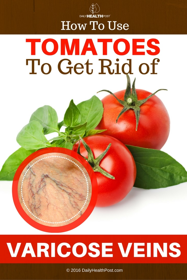 how-to-use-tomatoes-to-get-rid-of-varicose-veins