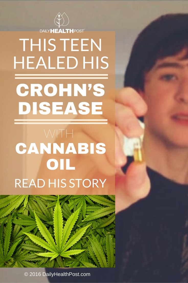 teen heals crohn's disease with cannabis oil