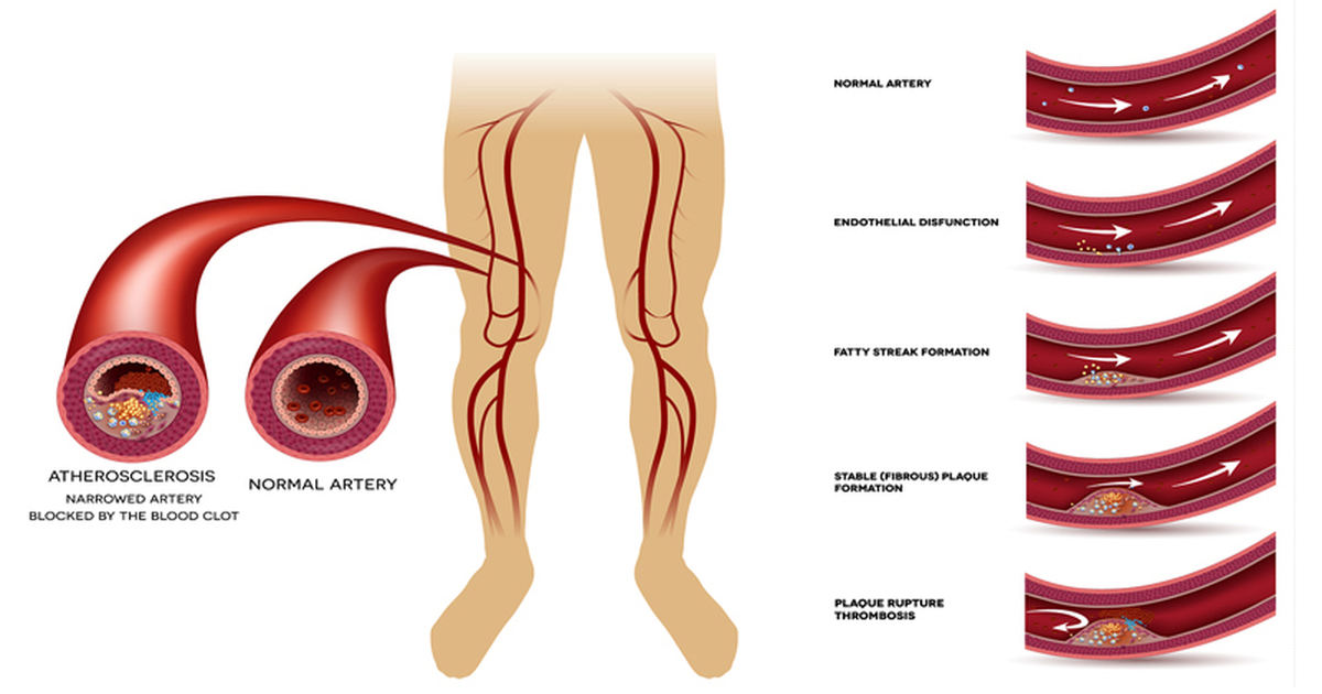 Foods That Can Clog Your Arteries