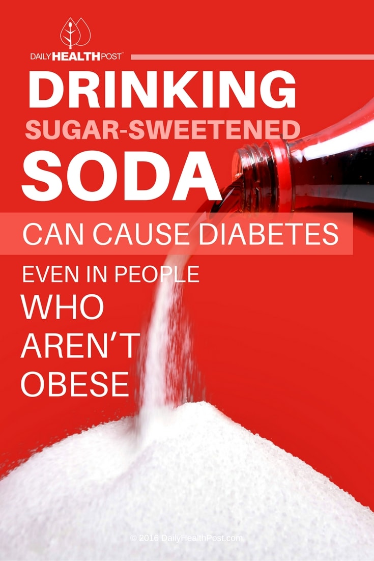 Sugar-Sweetened Drinks Cause Diabetes Regardless Of Size