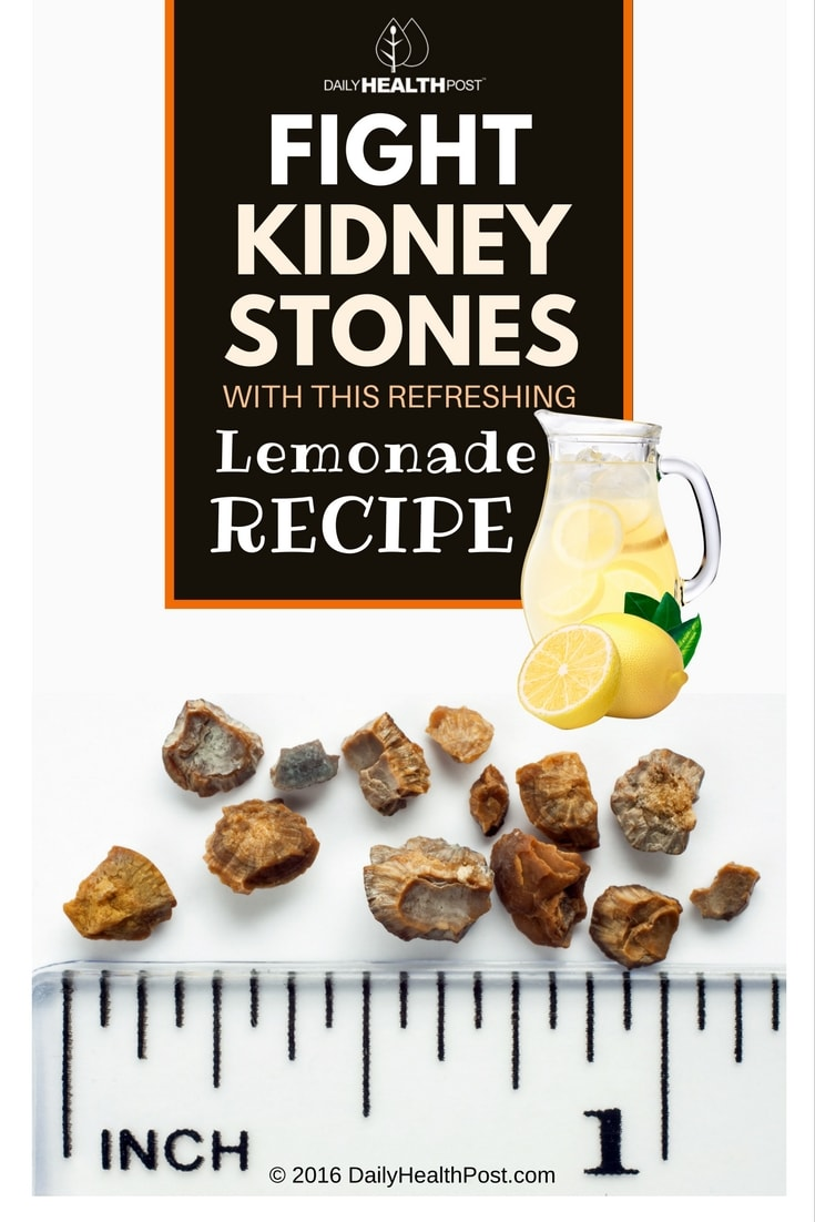 fight-kidney-stones-with-this-refreshing-lemonade-recipe