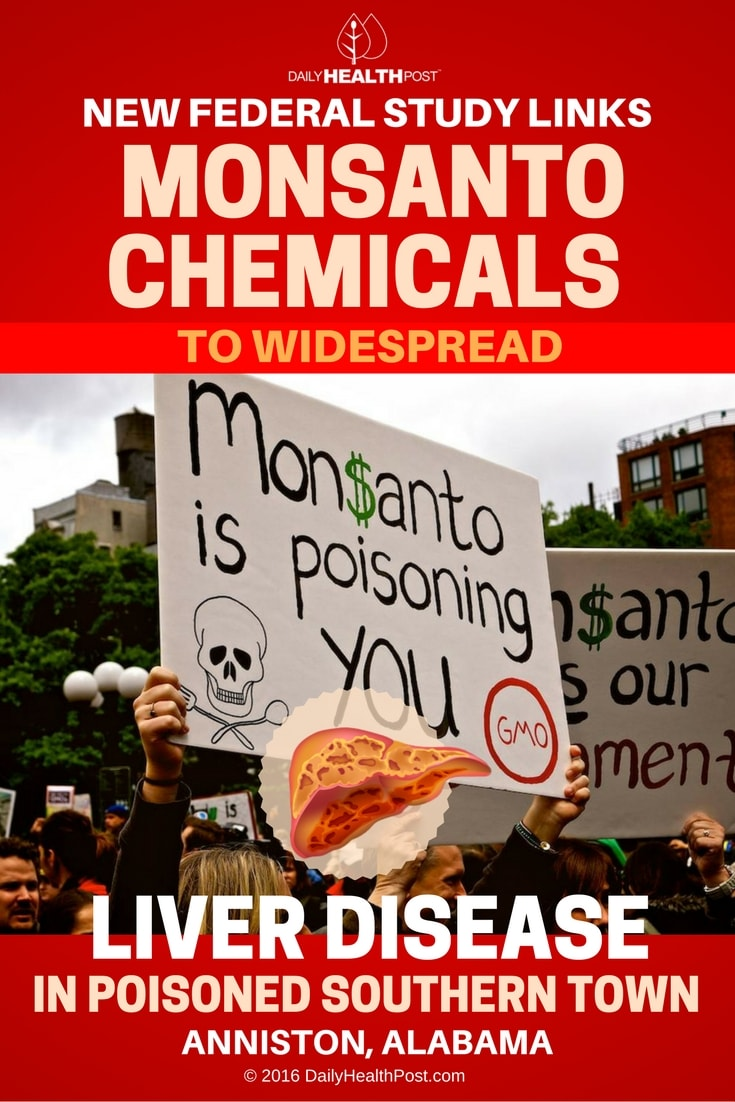 new-federal-study-links-monsanto-chemicals-to-widespread-liver-disease
