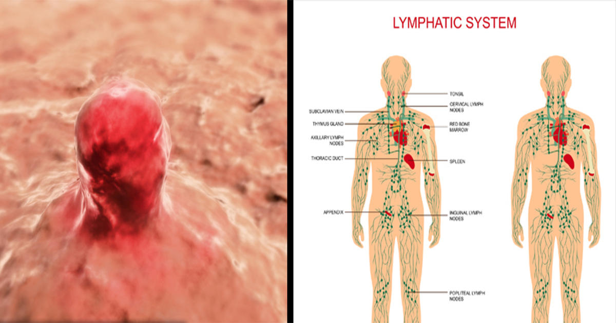 The Tumor Highway: Cancer And The Lymphatic System