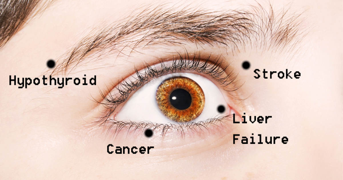 8 eye problems that may actually indicate disease