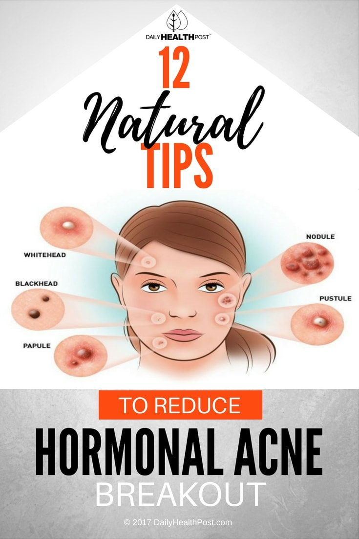 Natural Ways To Prevent Acne Breakouts