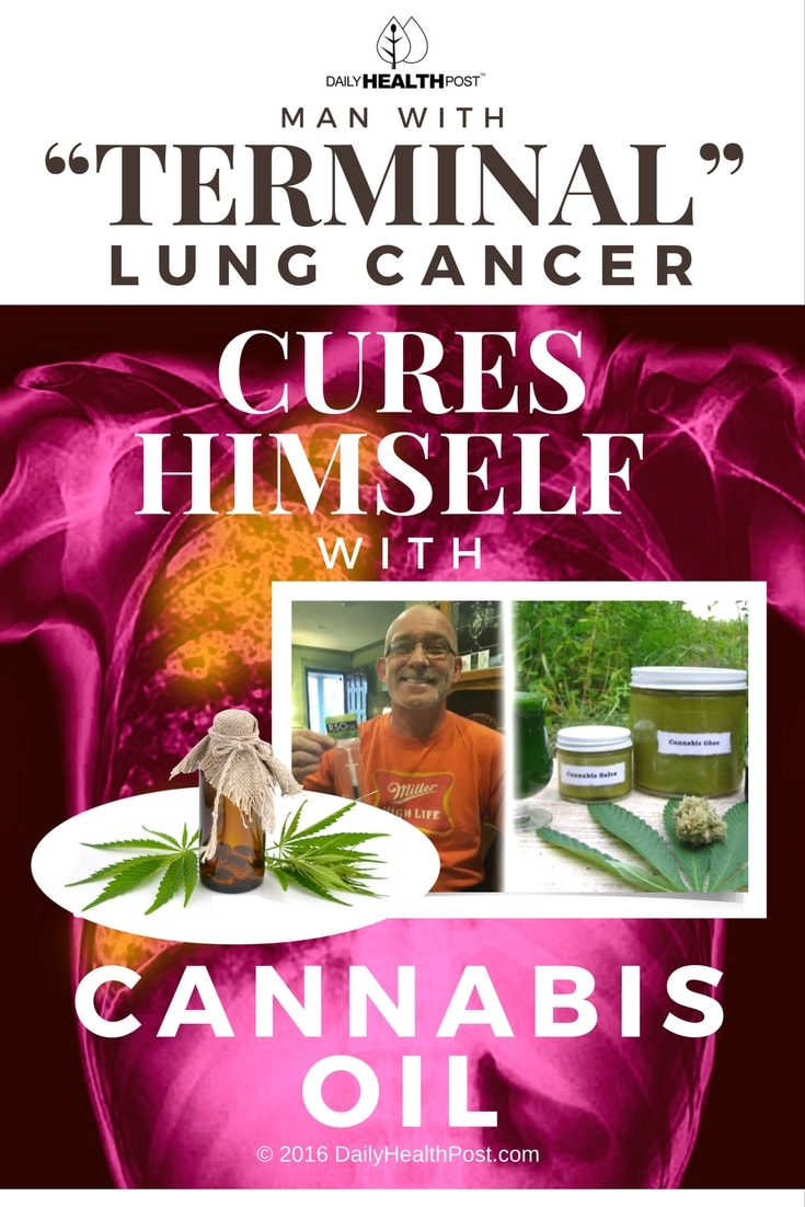 Can Lung Cancer Be Cured Naturally