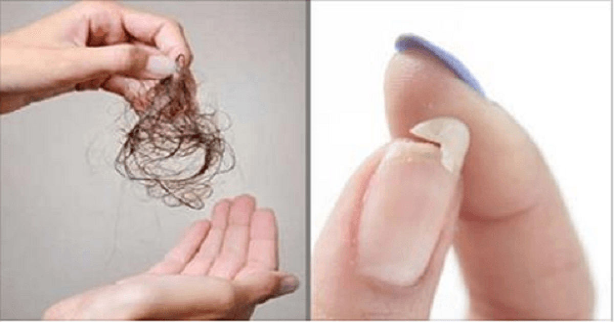 Natural Ways To Stop Hair Loss