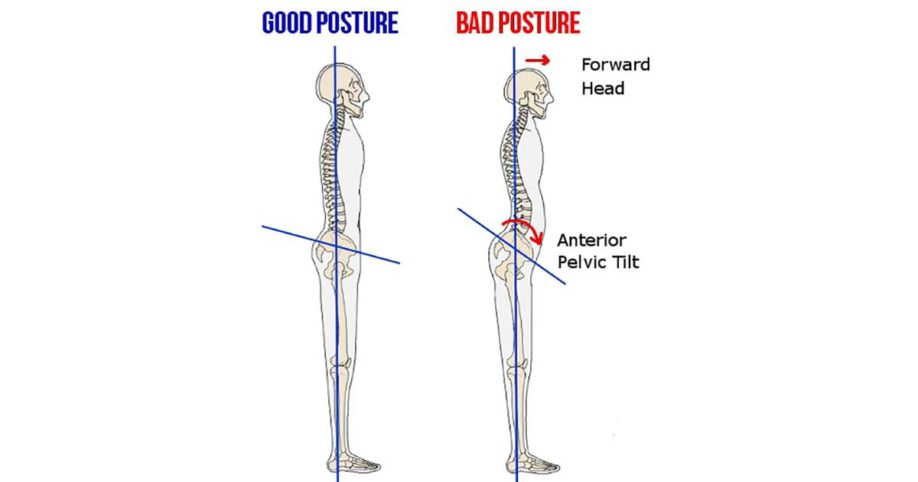 Image result for anterior pelvic tilt