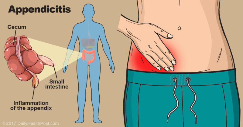 9 signs of appendicitis you probably didn't know about, Cephalic Vein