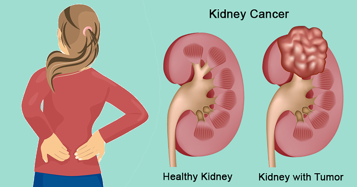11 Kidney Cancer Symptoms And How To Manage It Naturally