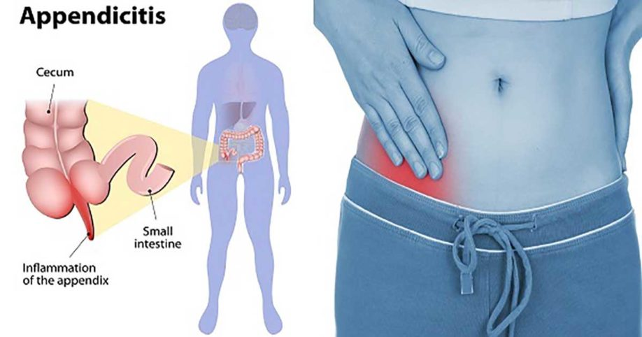 signs of appendicitis