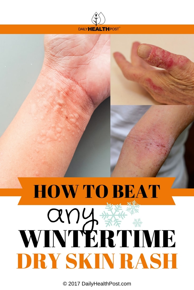 Forum on this topic: Get Rid of Dry, Itchy Skin, get-rid-of-dry-itchy-skin/