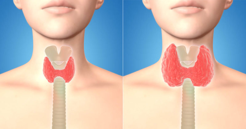 thyroid cancer screening