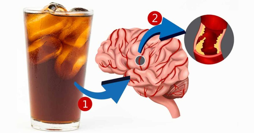 Diet Soda Leads To Obesity Help