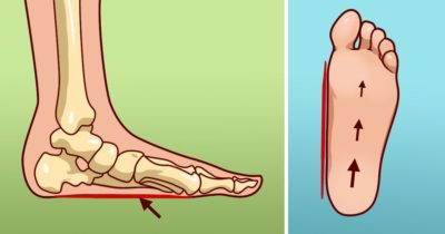 causes of foot pain
