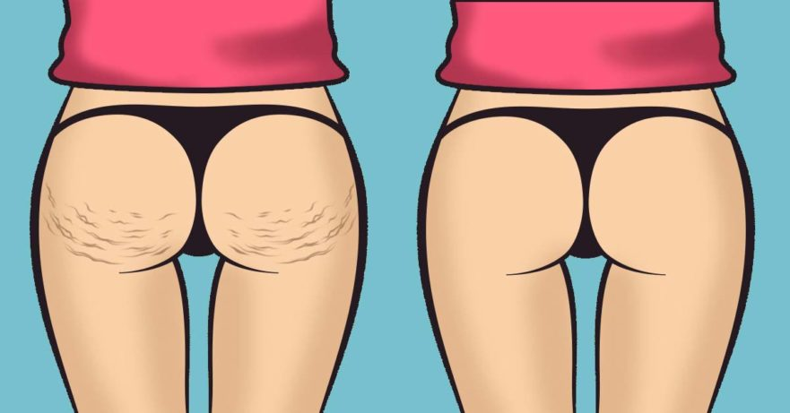 how to get rid of cellulite: 5 natural solutions for smooth skin