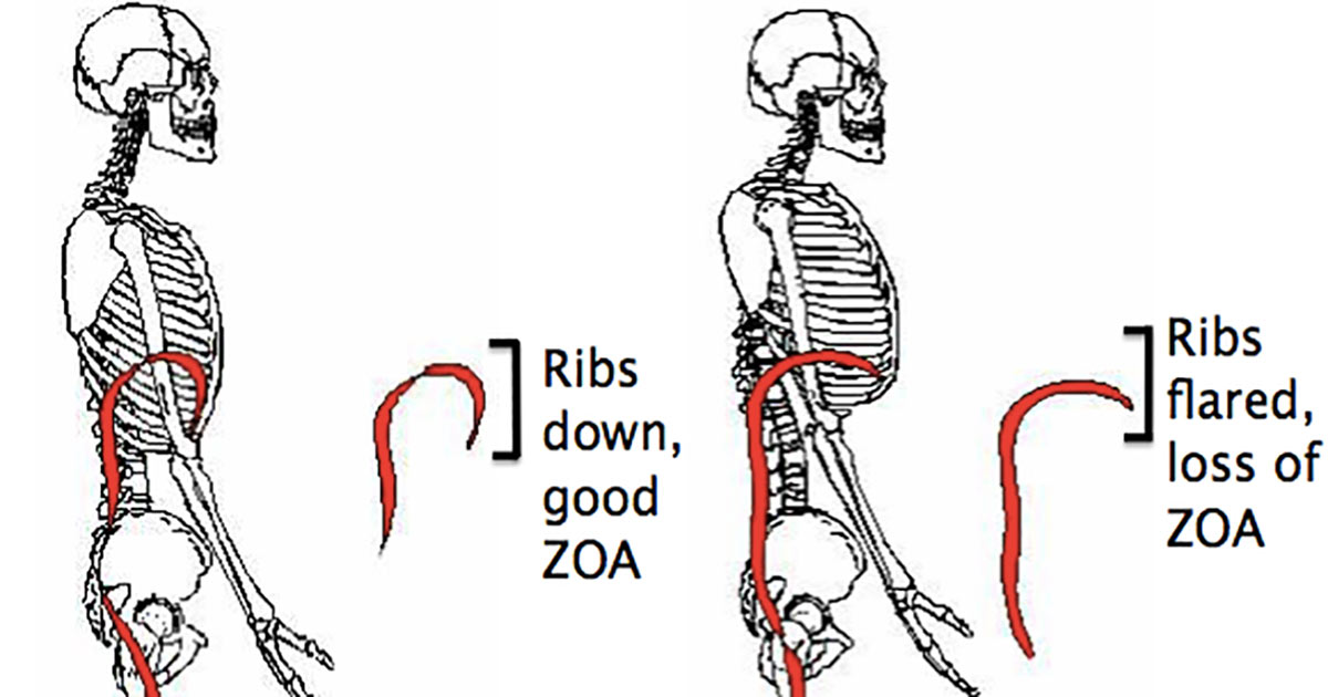 9 Best Exercises To Correct Flared Ribs Without Surgery