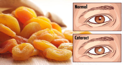 foods that are good for your eyes