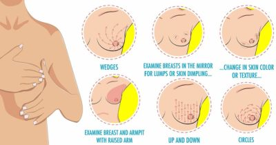 self breast exam