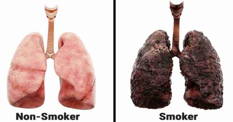 smoking lungs side effects